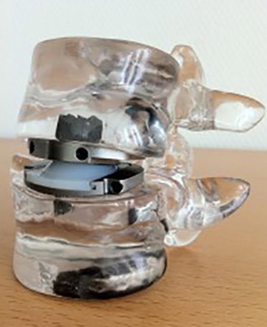 Bandscheibenprothese 01