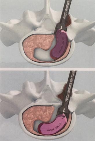 T-PAL. Transforminal Posterior Atraumatic Lumbar cage system